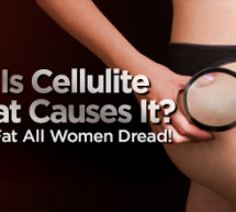 How to reduce cellulite with coffee.